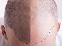 【10月20日は頭髪の日】薄毛世界地図第◯位の日本、治療技術は世界一!?